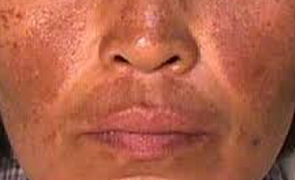 Melasma most notably appears on the  forehead, upper lip, nose and cheeks.