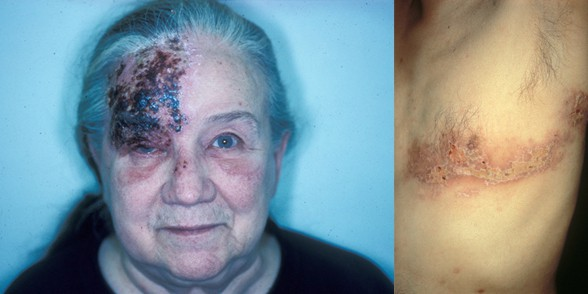 Pictures of facial shingles