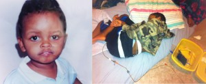 Parent-provided photos of child before and after onset of autism