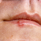 What are cold sores and why should I care?