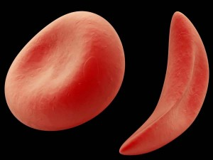 """Sickle"" red blood cells are curved like the farm tool of the same name."