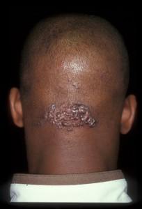 Acne keloidalis  nuchae, or AKN