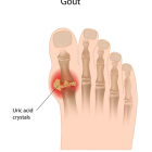 African Americans especially susceptible to gout