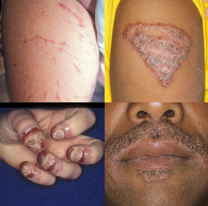 Allergic contact dermatitis due to (clockwise from top left) poison ivy on the leg, temporary tattoo dye, dye for beards and moustaches, and acrylic nail glue
