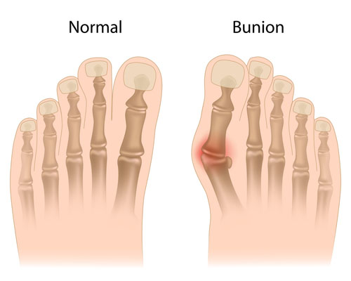 bunion 1web
