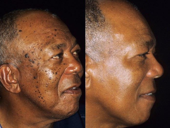 Dermatosisweb