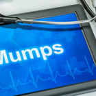 health_advice.mumps.24