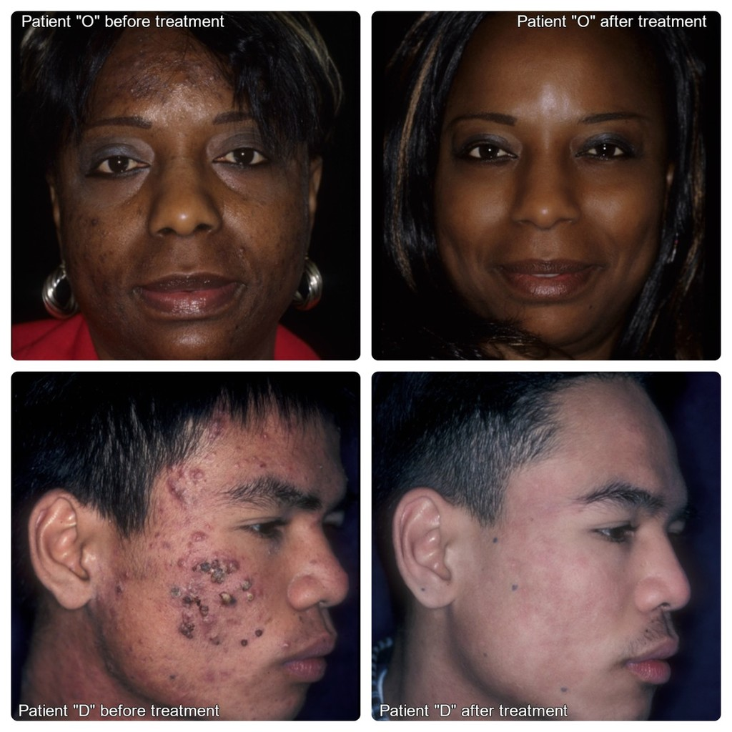Acne before and after treatments