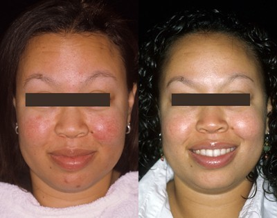 A patient with rosacea shows a more flushed, rosy complexion before treatment (l) than after treatment (r).
