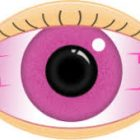 What is pink eye?