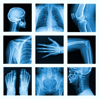 Preventing and treating osteoporosis