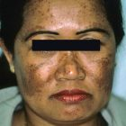 Melasma: a common, disturbing and challenging condition to treat