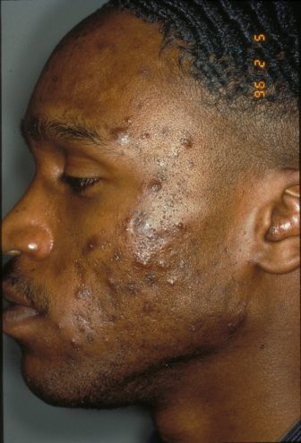 Treating skin of color: part two