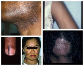 Treating skin of color: part three